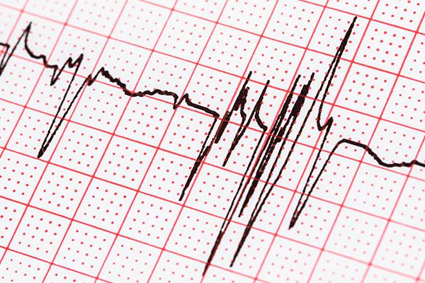 EKG Nedir