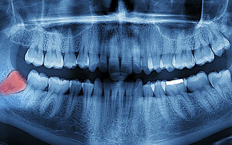Panoramik Röntgen Nedir