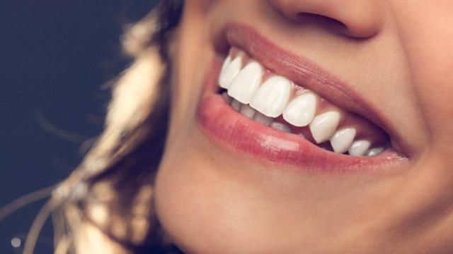 Gülüş Estetiği (Digital Smile Design)