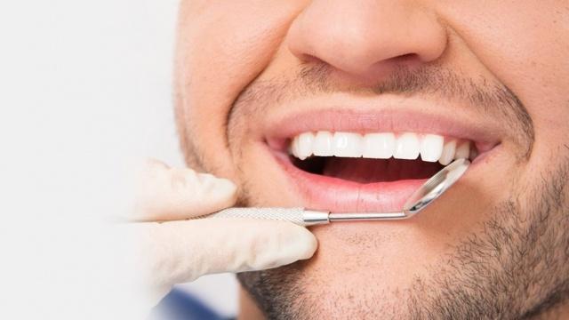 Zirkonyum - Porselen Diş Kaplamaları