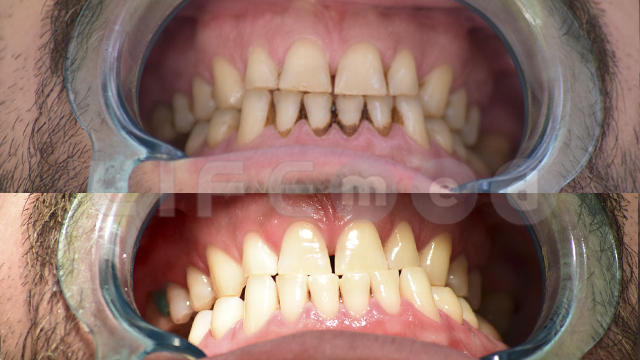 Dişlerim yeniden bembeyaz