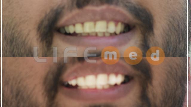 Dişlerim yeni halinden çok memnunum