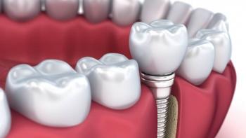 Diş Çekiminden Sonra Implant Uygulanabilir Mı?