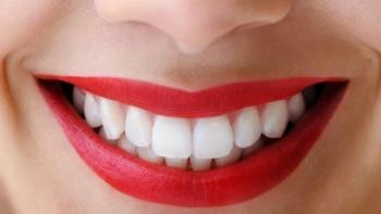 Estetik Diş Hekimliği (Diş Kaplama)