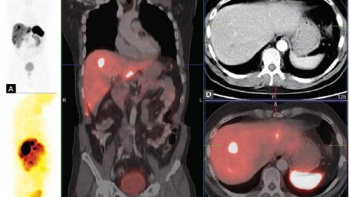 Ga-68 Peptid PET/CT