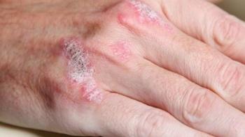 Psoriasis (Sedef Hastalığı)