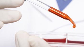 Rahim Ağzı Kanseri Tarama Testi Ne Zaman Yapılmalıdır?