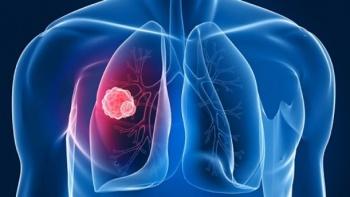 Akciğer Embolisinden Korunmak İçin Neler Yapılmalı?
