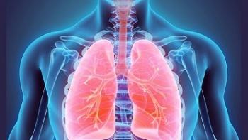 Akciğer Embolisinin Belirtileri Nedir?