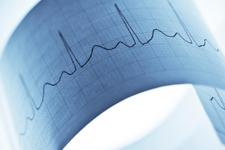 EKG Çekimi