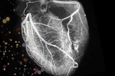 Kardiyak PET / CT