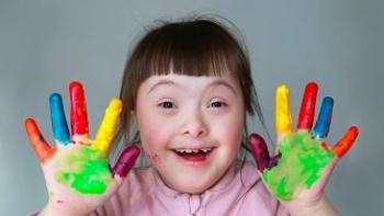 Down Sendromu Hakkında Bilmeniz Gerekenler