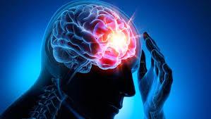 Epilepsi Nedir? Nedenleri Nelerdir?