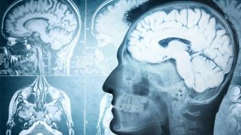 Beyin Sağlığı Check Up